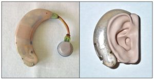 Zenith Diplomat BTE Hearing Aids from 1956